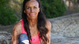 Turia Pitt on why mums shouldn't be afraid of running after having a baby